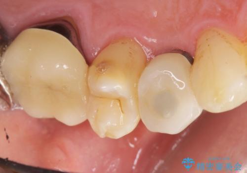 歯がわれた 抜歯してインプラント 50代男性の治療後