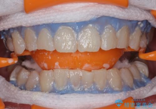 エクセレントホワイトニングで白くてきれいな歯に。の治療中
