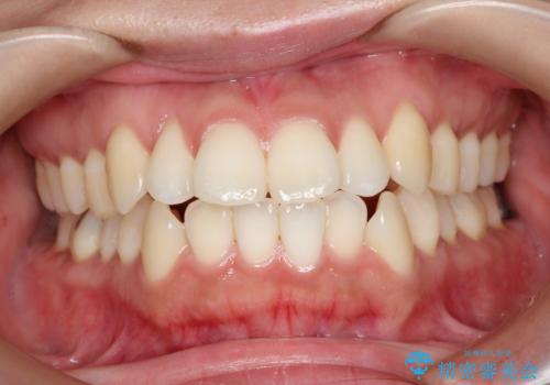 口元出てるのが気になる ワイヤーでの抜歯矯正で口元をすっきりとの症例 治療前
