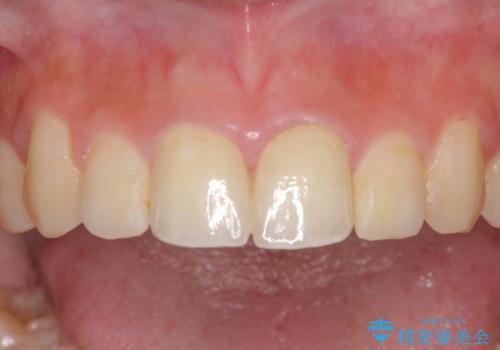 仮歯が汚くて恥ずかしい 前歯のオールセラミッククラウンの治療後