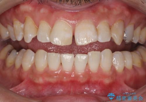 PMTCで歯の着色を除去し、ホワイトニングできれいに。の症例 治療後