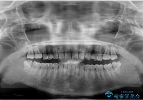 気になる出っ歯とすきっ歯をインビザラインで改善の治療後