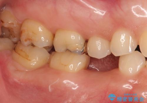 残せなくなってしまった乳歯 インプラントによる補綴の治療中