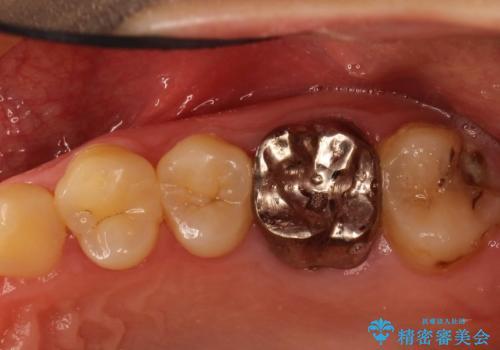 奥歯が割れてしまった! → インプラントによるかみ合わせの回復の症例 治療前