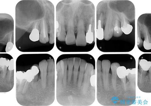奥歯で物を噛めるようにしたい 入れ歯による咬合回復の治療前