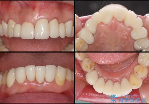前歯をきれいに 部分矯正とオールセラミッククラウンの治療後