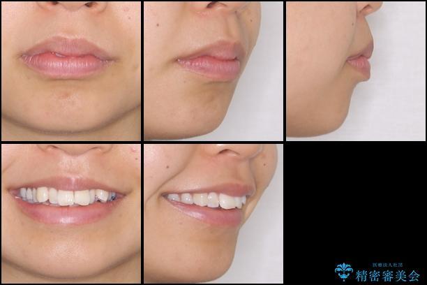 転勤しても治療を継続 ワイヤー矯正からインビザラインへの切り替えの治療前(顔貌)
