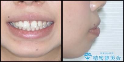 気になる出っ歯とすきっ歯をインビザラインで改善の治療前(顔貌)
