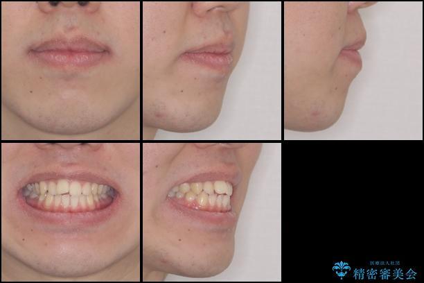 前歯のデコボコをワイヤー矯正で速やかに改善の治療前(顔貌)