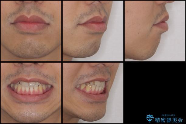 インビザラインによる口元の改善の治療前(顔貌)