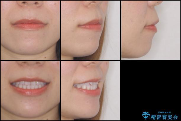 反対咬合を治したい インビザラインによる矯正治療の治療前(顔貌)