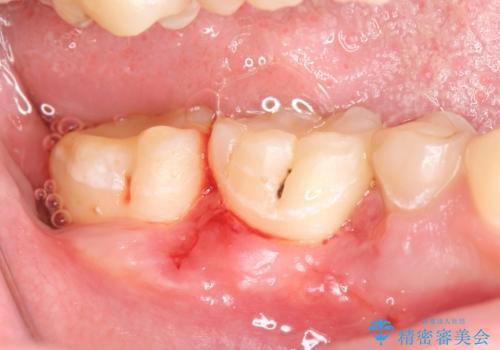 オールセラミッククラウン 歯肉より深い虫歯の治療の治療後