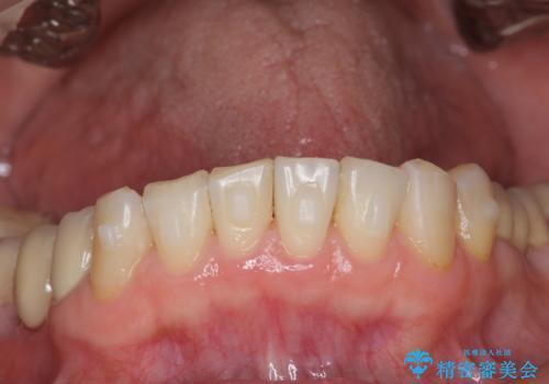 前歯の突き上げを改善する インビザライン による小矯正の治療中