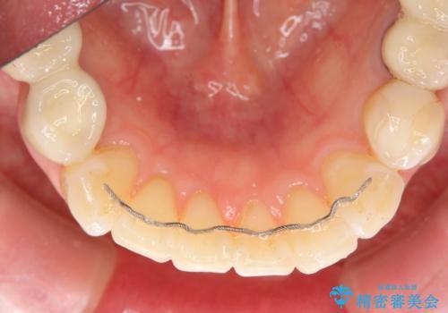 前歯の突き上げを改善する インビザライン による小矯正の治療後
