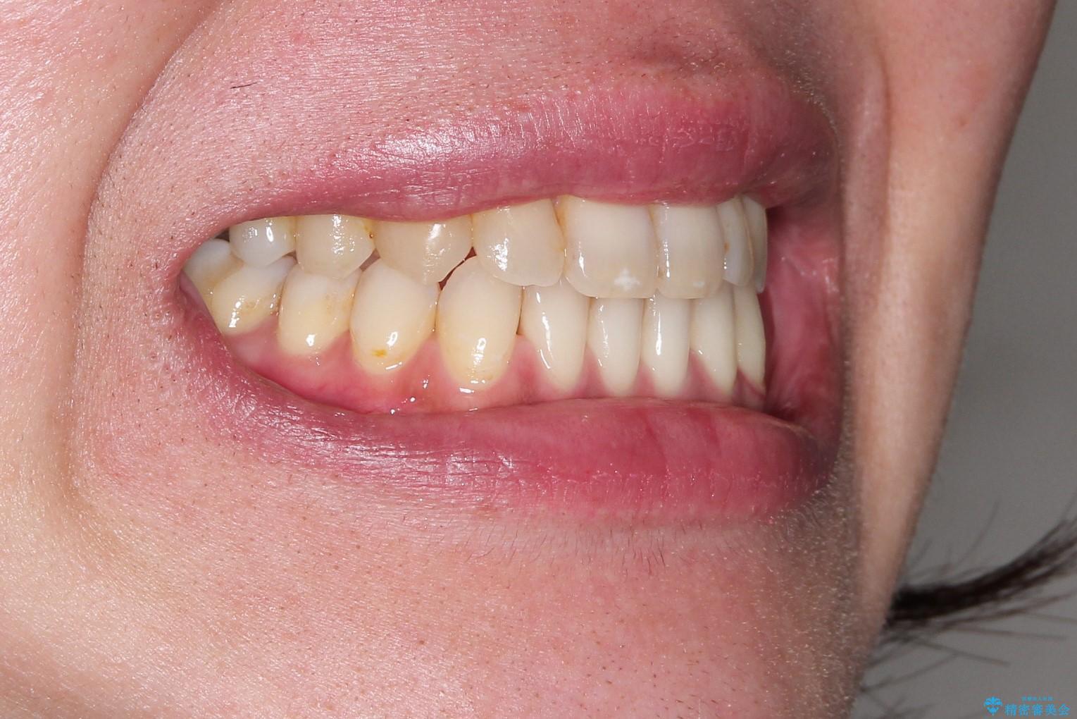 Invisalign インビザライン によるガタつき、受け口傾向の改善の治療後(顔貌)