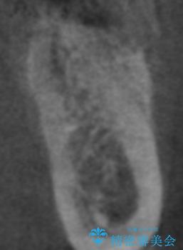 骨が薄い部位への骨造成をともなうインプラントの治療後