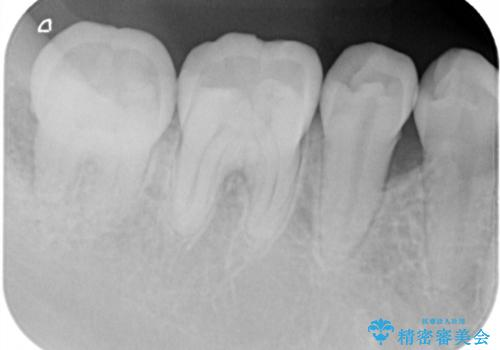 このままでは抜歯と言われた 失われた骨の再生治療 の治療前