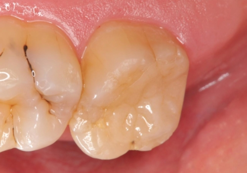 銀歯の劣化・セラミックインレー修復の治療後