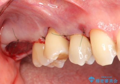 部分矯正を含む 歯周病治療 (再生治療・歯周ポケット除去・MTM・連結補綴)の治療後