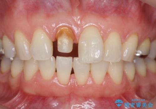 前歯の変色 セラミック審美補綴の治療中