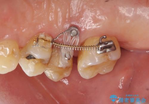 部分矯正を含む 歯周病治療 (再生治療・歯周ポケット除去・MTM・連結補綴)の治療中