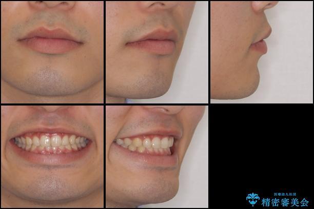 インビザラインによる、すきっ歯の改善の治療後(顔貌)