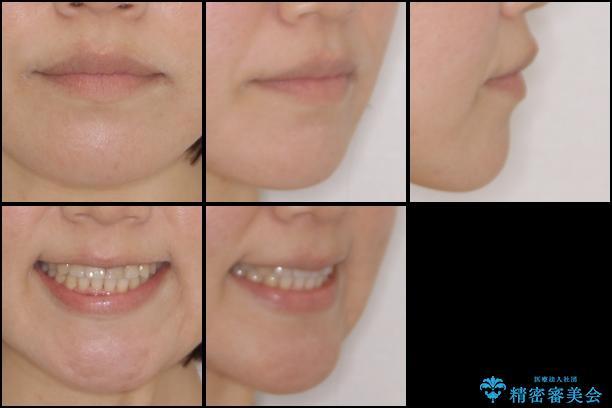 前歯の反対咬合 非抜歯のワイヤー矯正の治療後(顔貌)