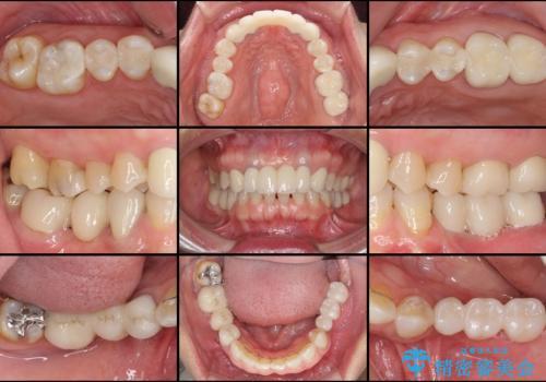飛行機を利用しての通院 気になる所を全て治療する総合歯科治療の治療後