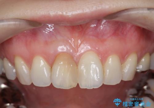 前歯の変色 セラミック審美補綴の治療前