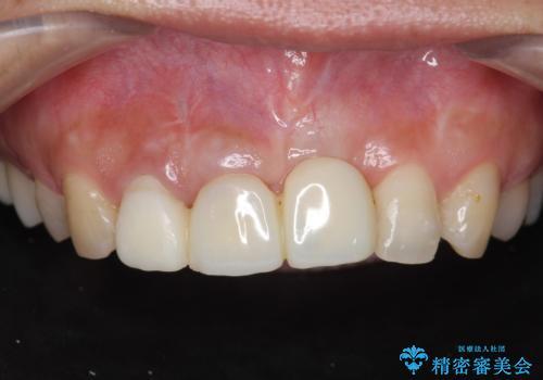 不良インプラントの除去・骨造成・歯肉移植・前歯審美セラミックブリッジ製作の症例 治療前