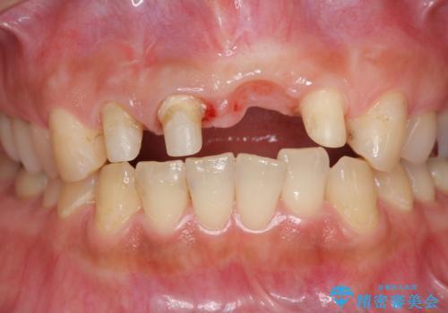 不良インプラントの除去・骨造成・歯肉移植・前歯審美セラミックブリッジ製作の治療中