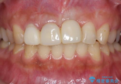 不良インプラントの除去・骨造成・歯肉移植・前歯審美セラミックブリッジ製作の治療前