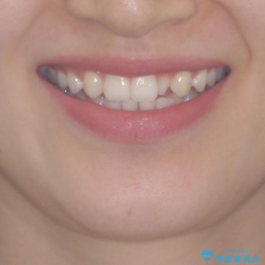 海外転居前に気になる前歯を整えたい 上下前歯の部分矯正の治療前(顔貌)