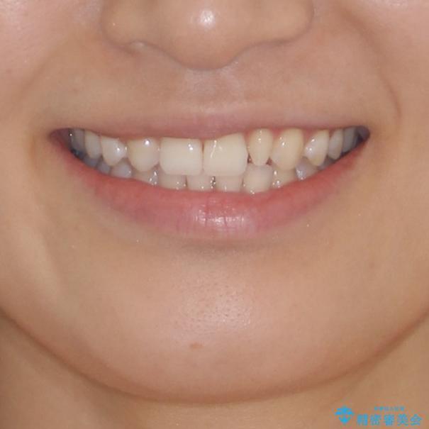 海外転居前に気になる前歯を整えたい 上下前歯の部分矯正の治療後(顔貌)