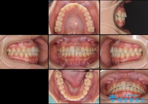 前歯の反対咬合 非抜歯のワイヤー矯正の治療後