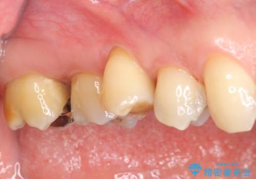 部分矯正を含む 歯周病治療 (再生治療・歯周ポケット除去・MTM・連結補綴)の症例 治療前