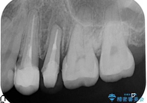 歯肉の中までの深い虫歯 部分矯正後のセラミック治療の治療中