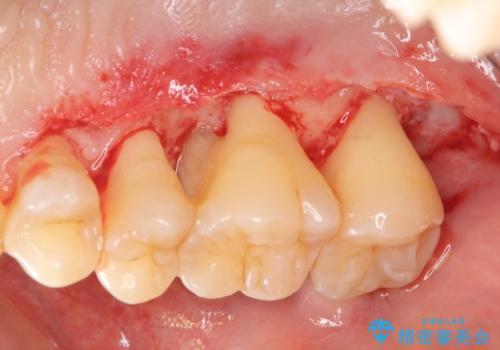 [歯周病治療] 再生療法 歯肉弁根尖側移動術の治療中