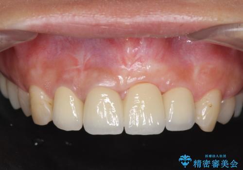 不良インプラントの除去・骨造成・歯肉移植・前歯審美セラミックブリッジ製作の症例 治療後