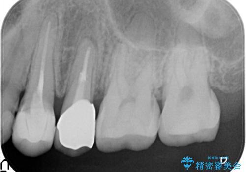 歯肉の中までの深い虫歯 部分矯正後のセラミック治療の治療後