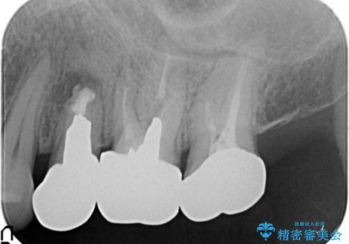 小臼歯部のインプラントの治療前