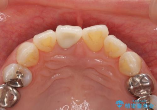 前歯の変色 セラミック審美補綴の治療後