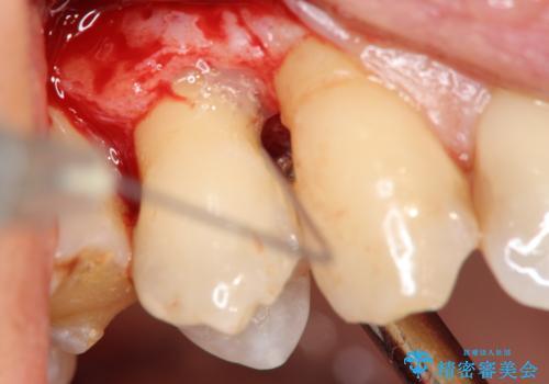 部分矯正を含む 歯周病治療 (再生治療・歯周ポケット除去・MTM・連結補綴)の治療前