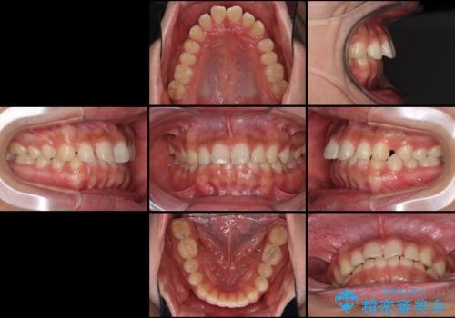 インビザラインによる、すきっ歯の改善の治療前