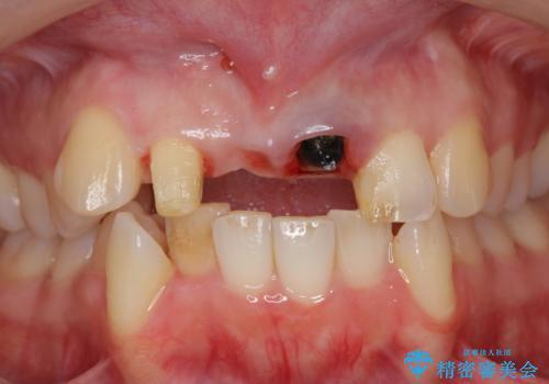 仮歯のまま放置してしまった 審美を改善したいの治療中