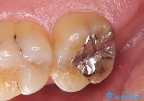 銀歯の劣化・セラミックインレー修復の治療前