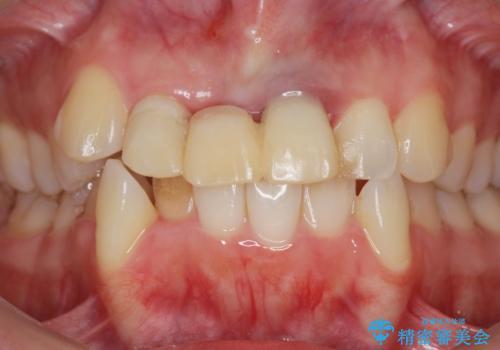 仮歯のまま放置してしまった 審美を改善したいの治療前