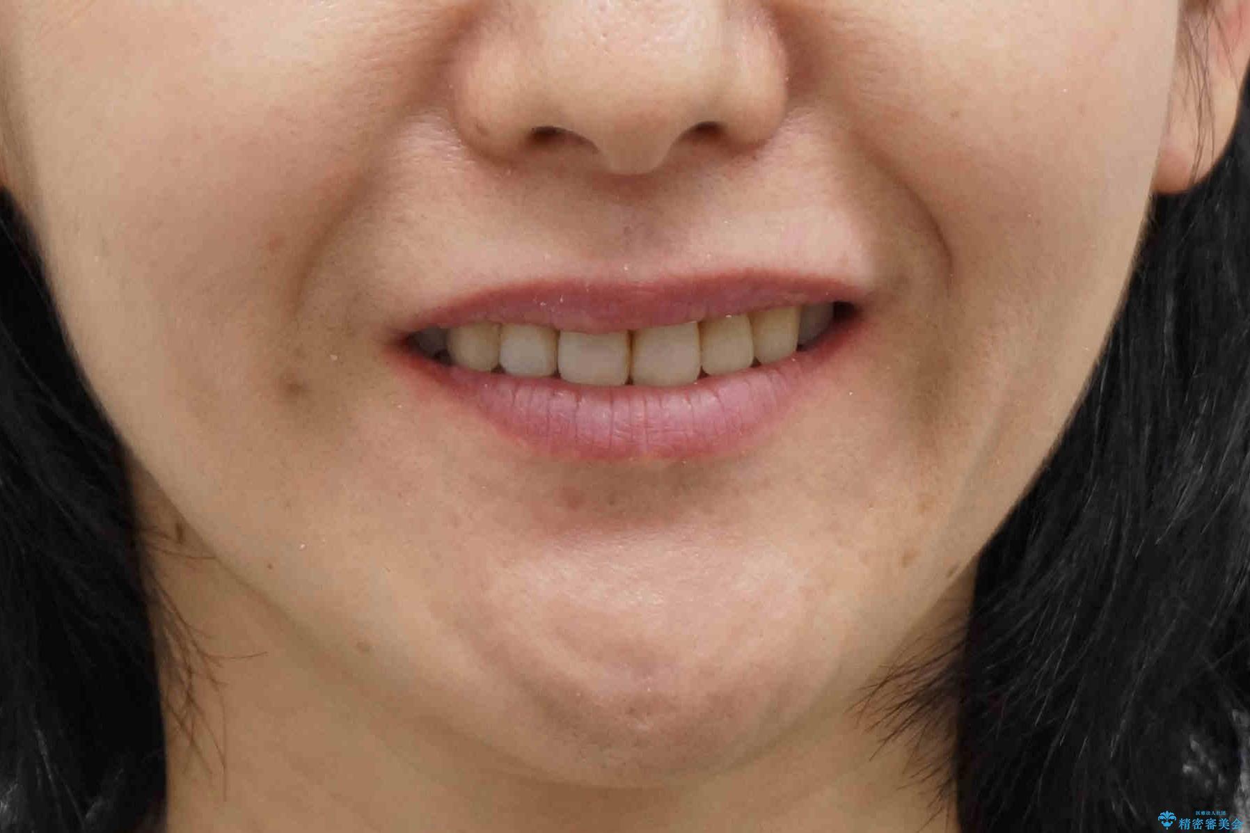 前歯で引っ込んでいる歯がある 他院で矯正200万と言われたの治療後(顔貌)