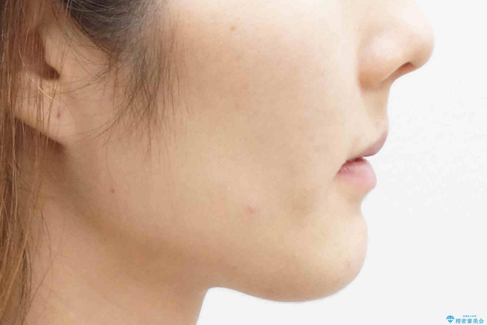 ハーフリンガル 犬歯のねじれ 歯根の外部吸収している歯を抜歯の治療後(顔貌)