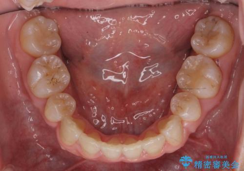 ハーフリンガル 犬歯のねじれ 歯根の外部吸収している歯を抜歯の治療後